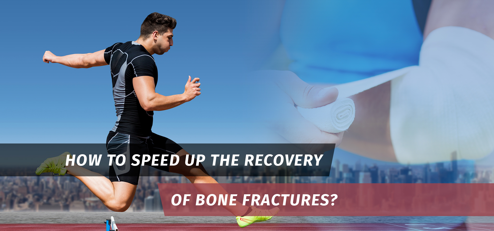 Recovery of Bone Fractures