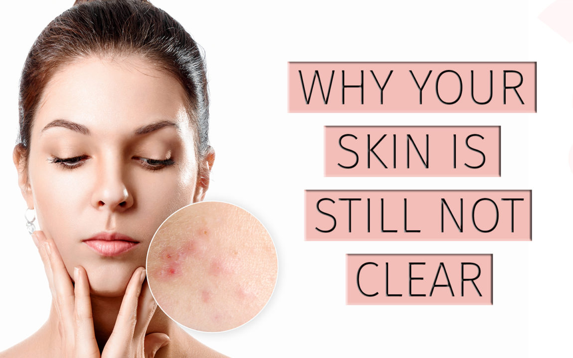 Why your skin is still not clear